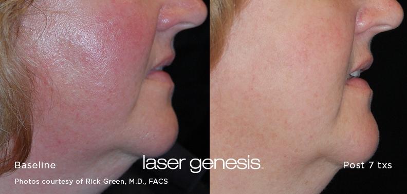 Laser Genesis Skin Rejuvenation treatment near you in Gilbert, Arizona