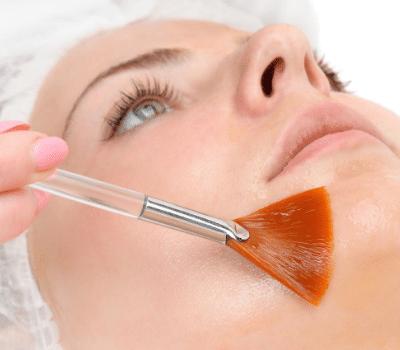 Facial chemical peel