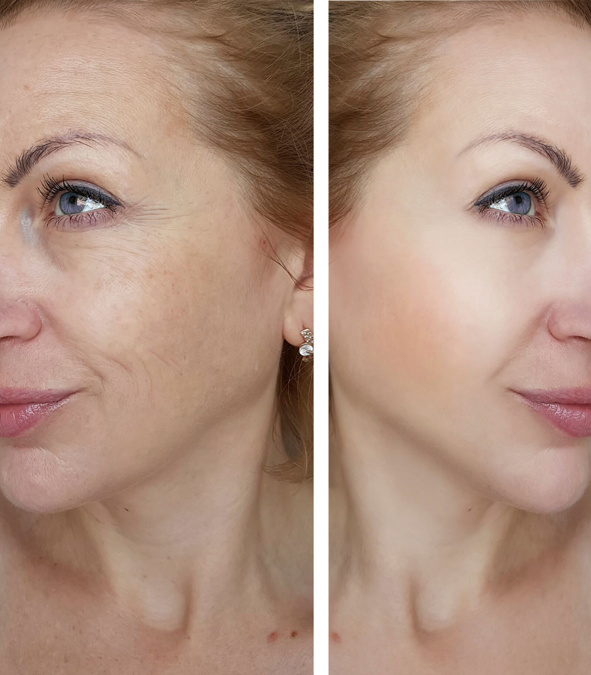 before and after comparison of a woman's face with wrinkled and tight skin.