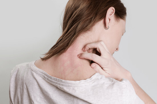 rosacea flare-up